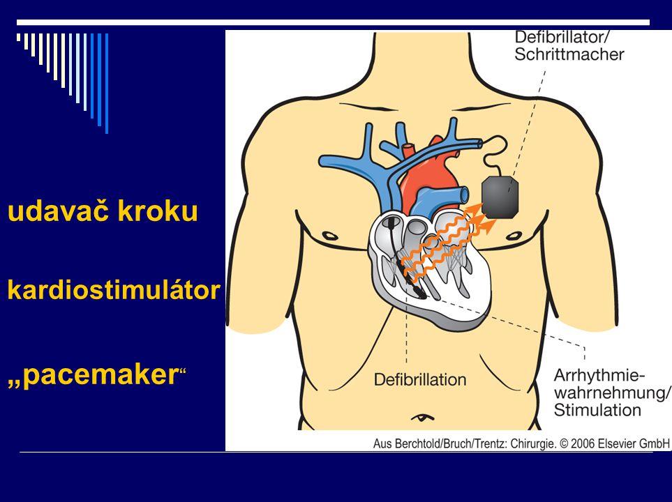 "udavač kroku kardiostimulátor ""pacemaker"