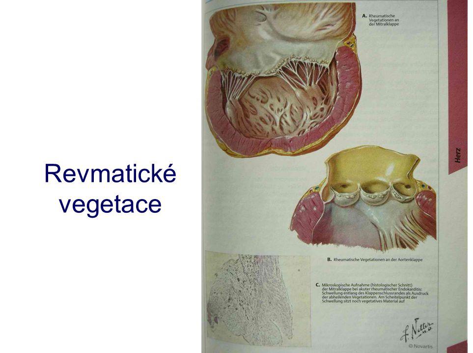 Revmatické vegetace