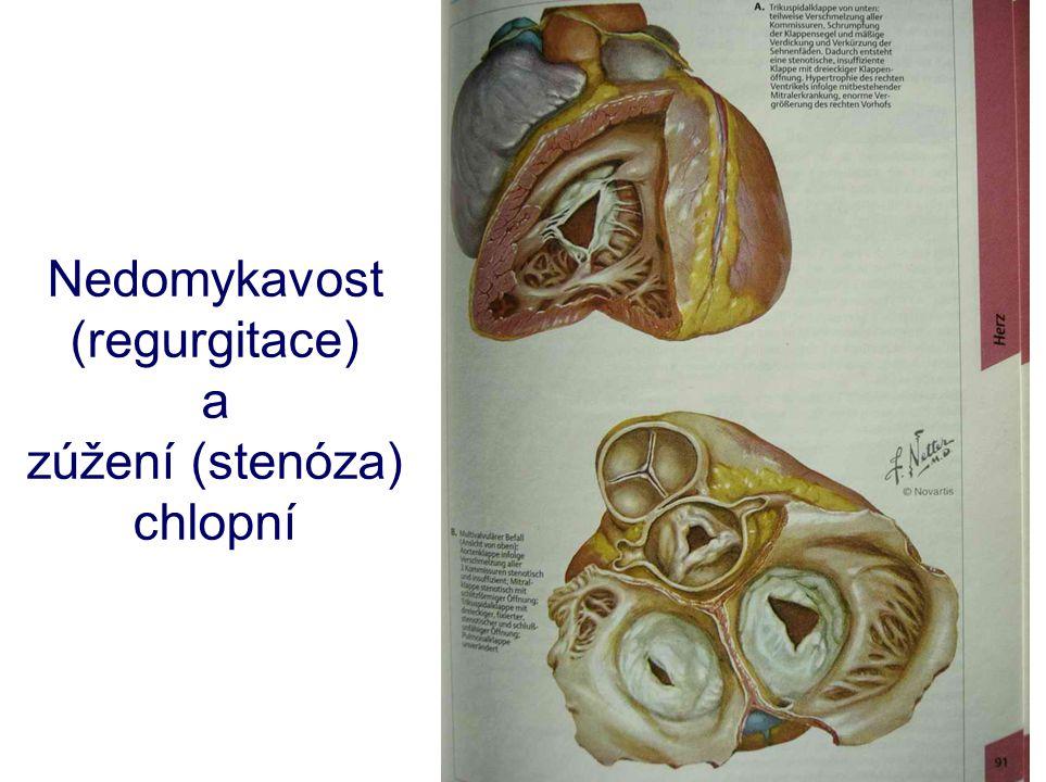 Nedomykavost (regurgitace) a zúžení (stenóza) chlopní
