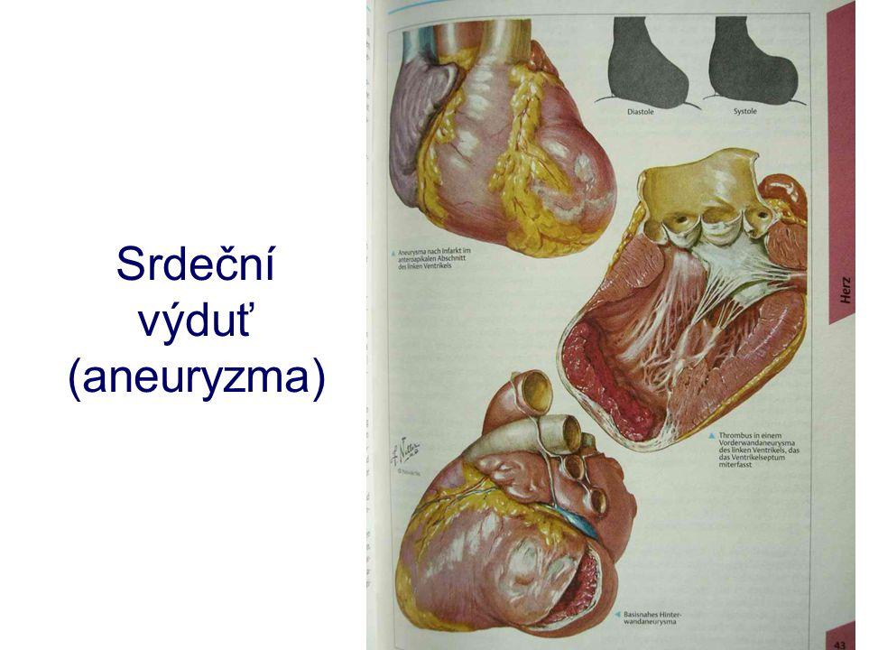 Srdeční výduť (aneuryzma)