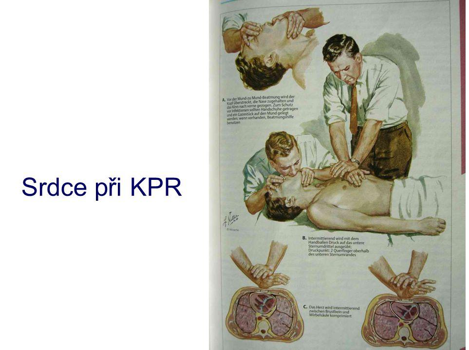 Srdce při KPR