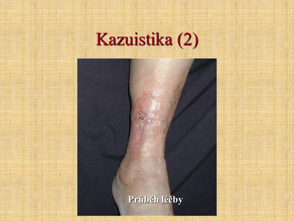 Kazuistika (2) Průběh léčby