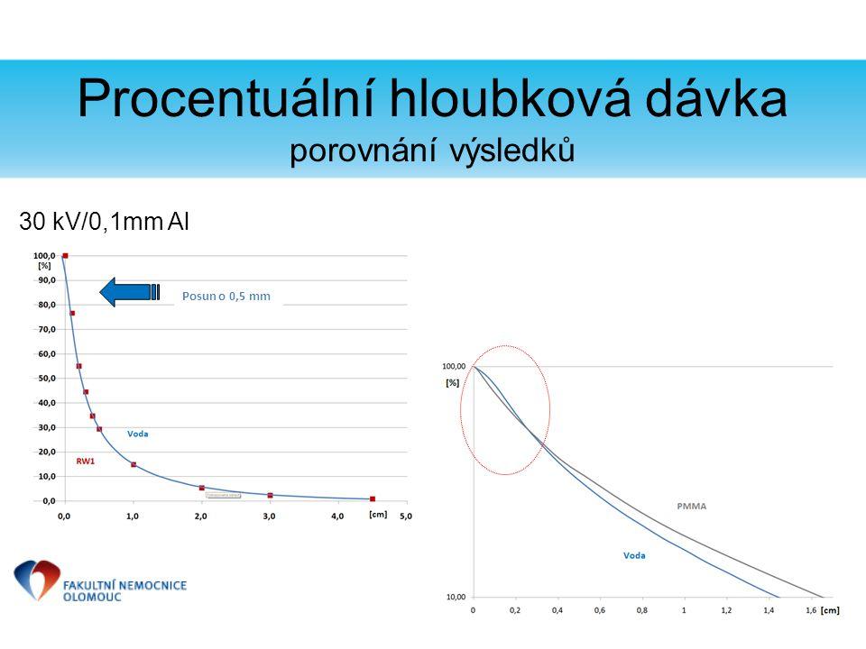 Procentuální hloubková dávka porovnání výsledků