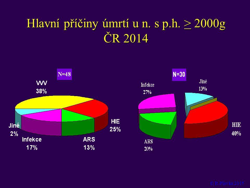 Hlavní příčiny úmrtí u n. s p.h. > 2000g ČR 2014