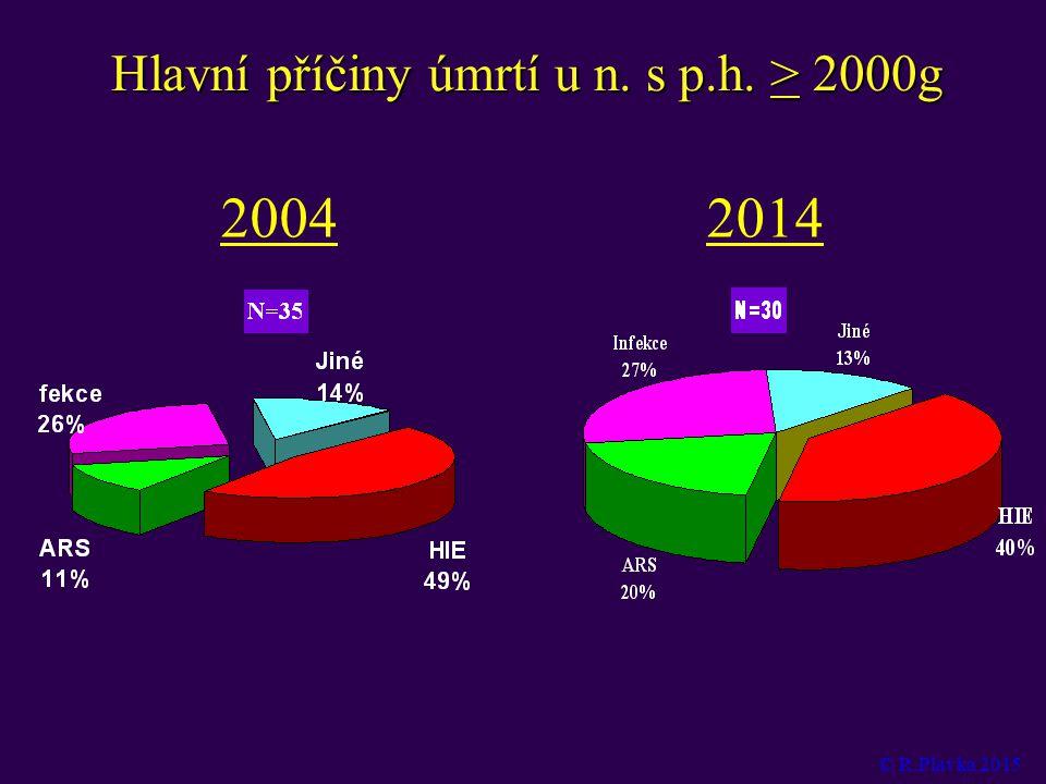 Hlavní příčiny úmrtí u n. s p.h. > 2000g