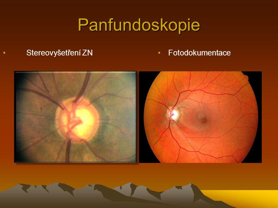 Panfundoskopie Stereovyšetření ZN Fotodokumentace Gonioskopie
