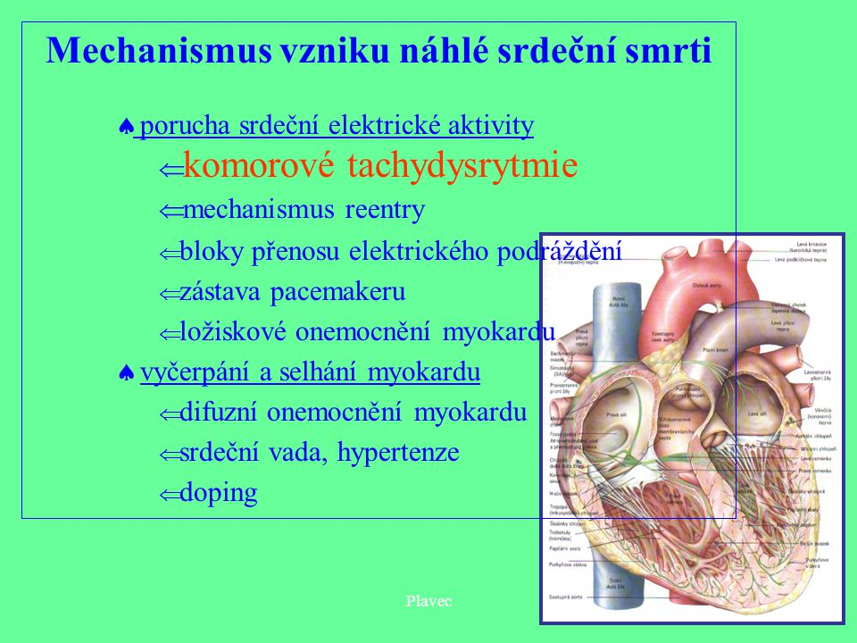 Mechanismus vzniku náhlé srdeční smrti