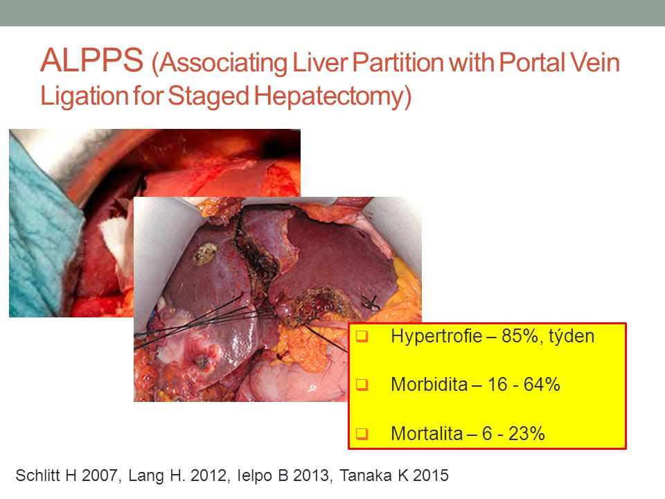 ALPPS (Associating Liver Partition with Portal Vein Ligation for Staged Hepatectomy)