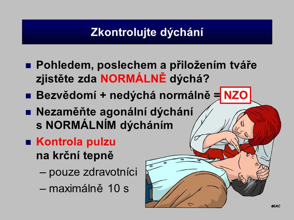 Zkontrolujte dýchání Pohledem, poslechem a přiložením tváře zjistěte zda NORMÁLNĚ dýchá Bezvědomí + nedýchá normálně = NZO.