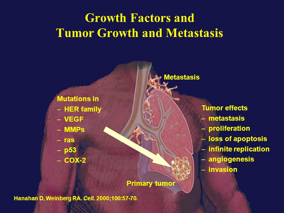 Growth Factors and Tumor Growth and Metastasis