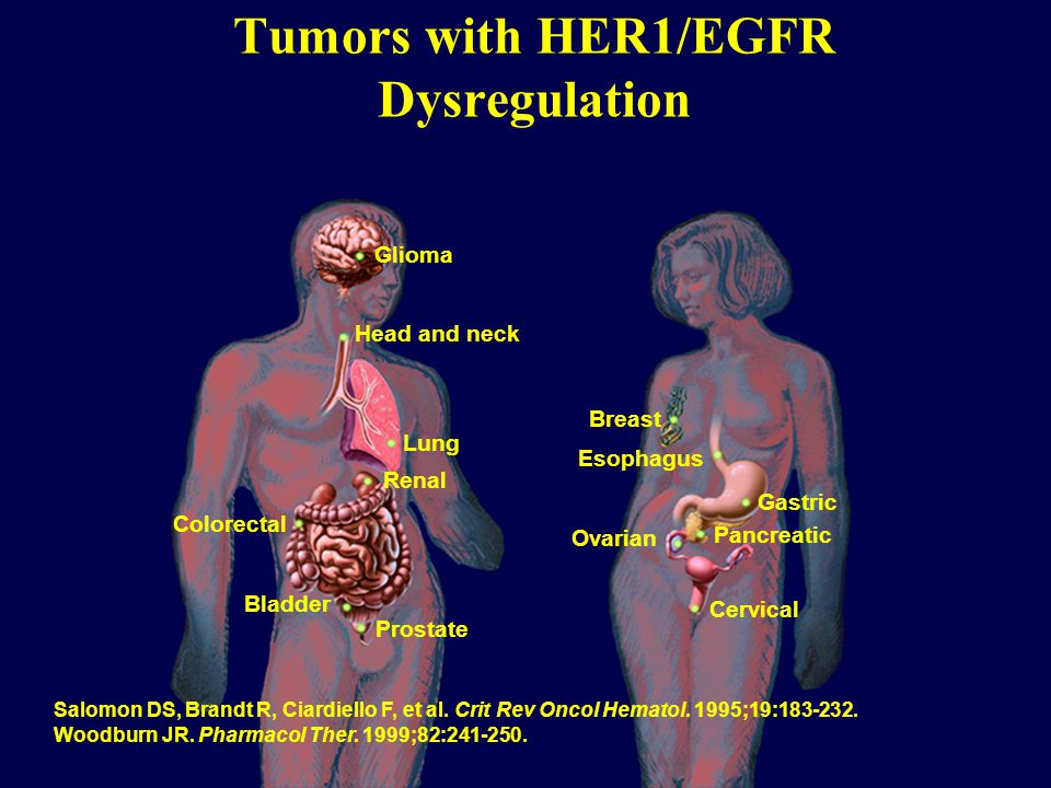 Tumors with HER1/EGFR Dysregulation