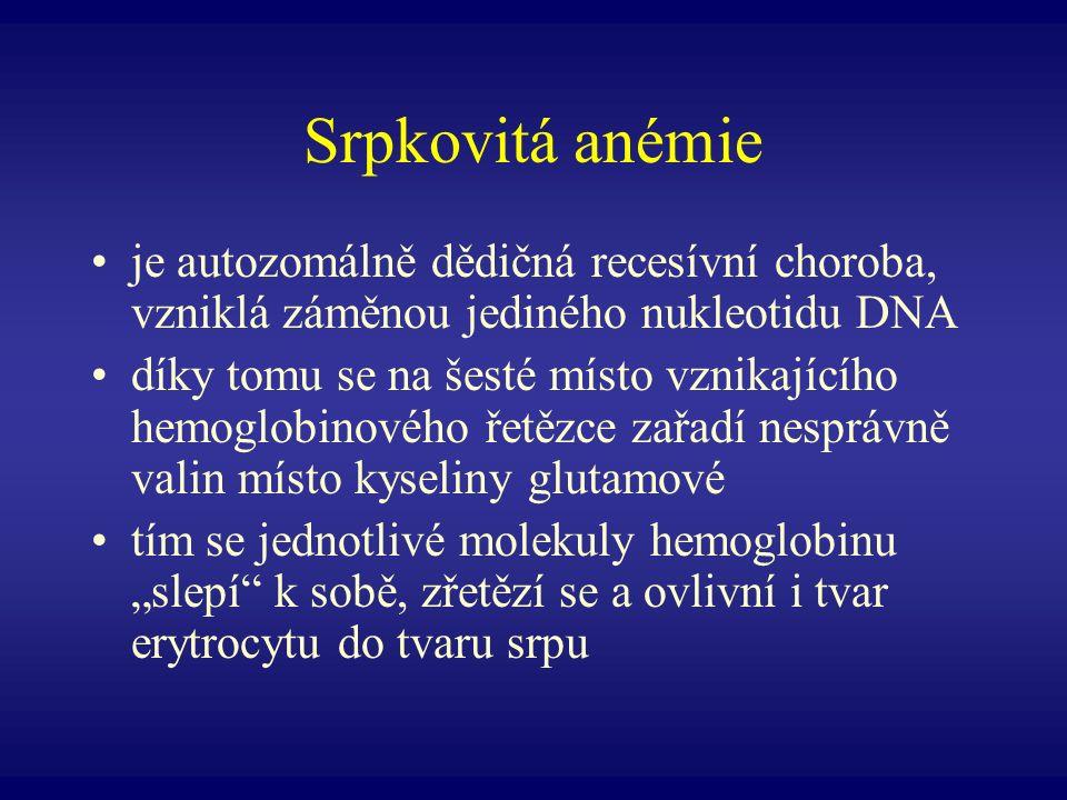 Srpkovitá anémie je autozomálně dědičná recesívní choroba, vzniklá záměnou jediného nukleotidu DNA.