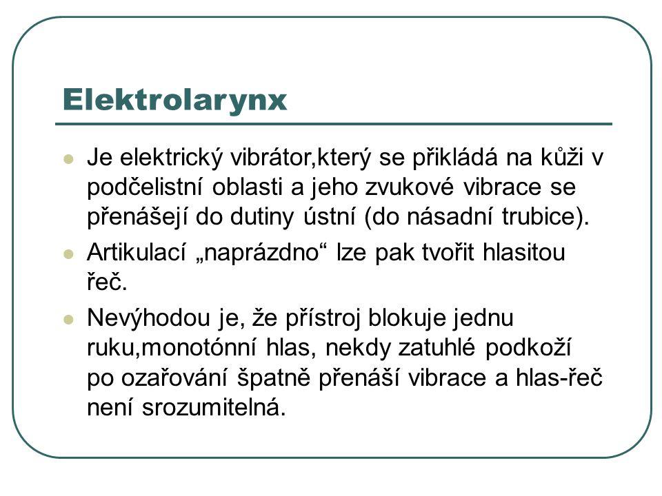 Elektrolarynx