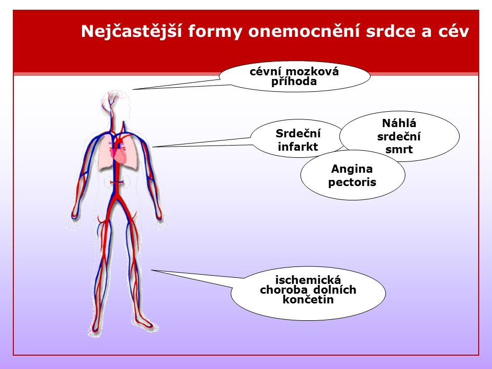 ischemická choroba dolních končetin