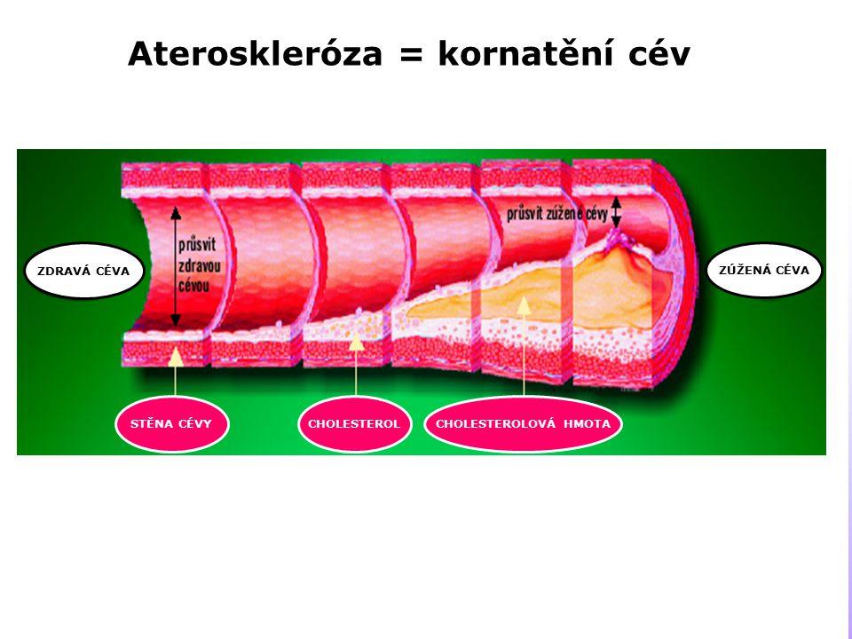Ateroskleróza = kornatění cév