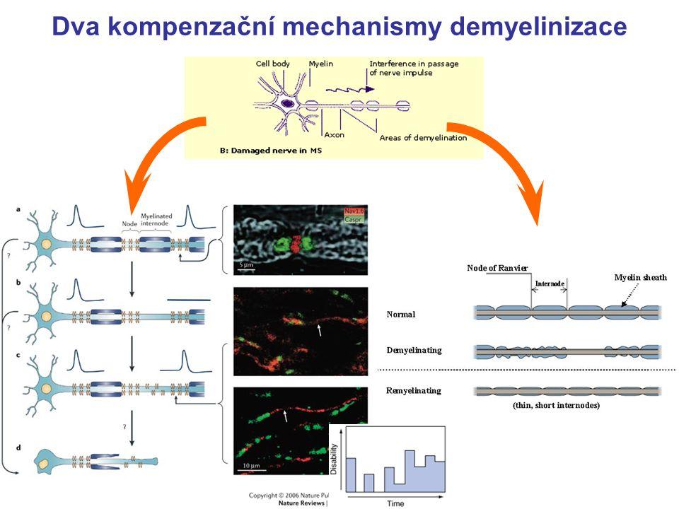 Dva kompenzační mechanismy demyelinizace