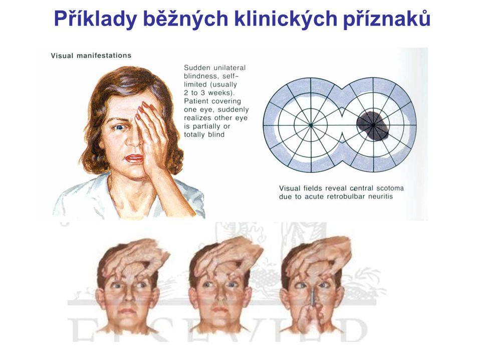 Příklady běžných klinických příznaků