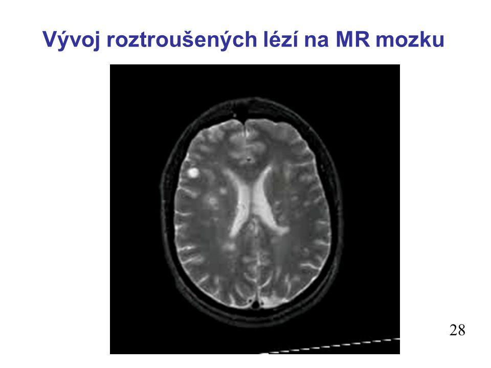 Vývoj roztroušených lézí na MR mozku