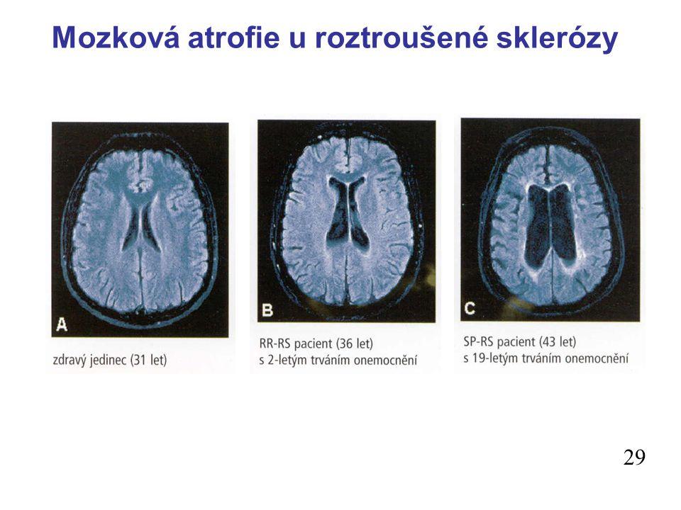 Mozková atrofie u roztroušené sklerózy