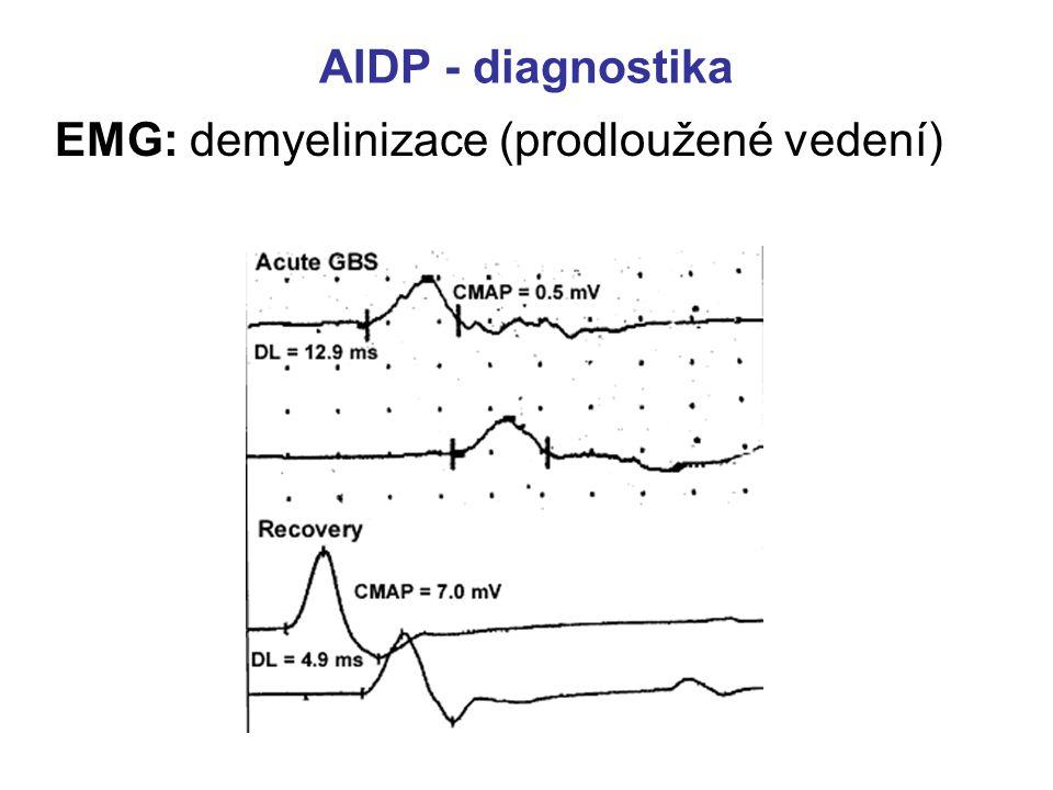 EMG: demyelinizace (prodloužené vedení)