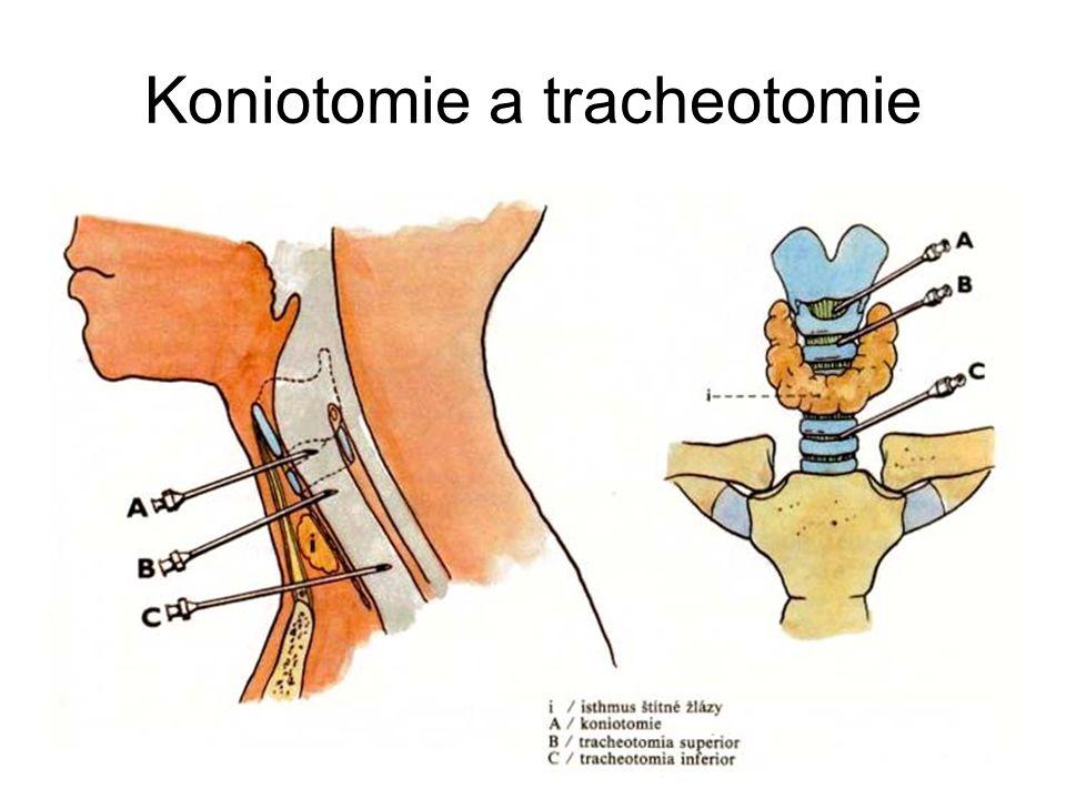 Koniotomie a tracheotomie