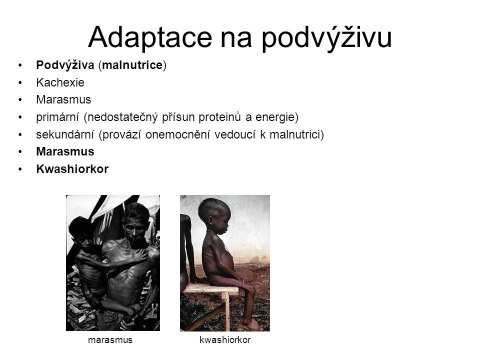 Adaptace na podvýživu Podvýživa (malnutrice) Kachexie Marasmus