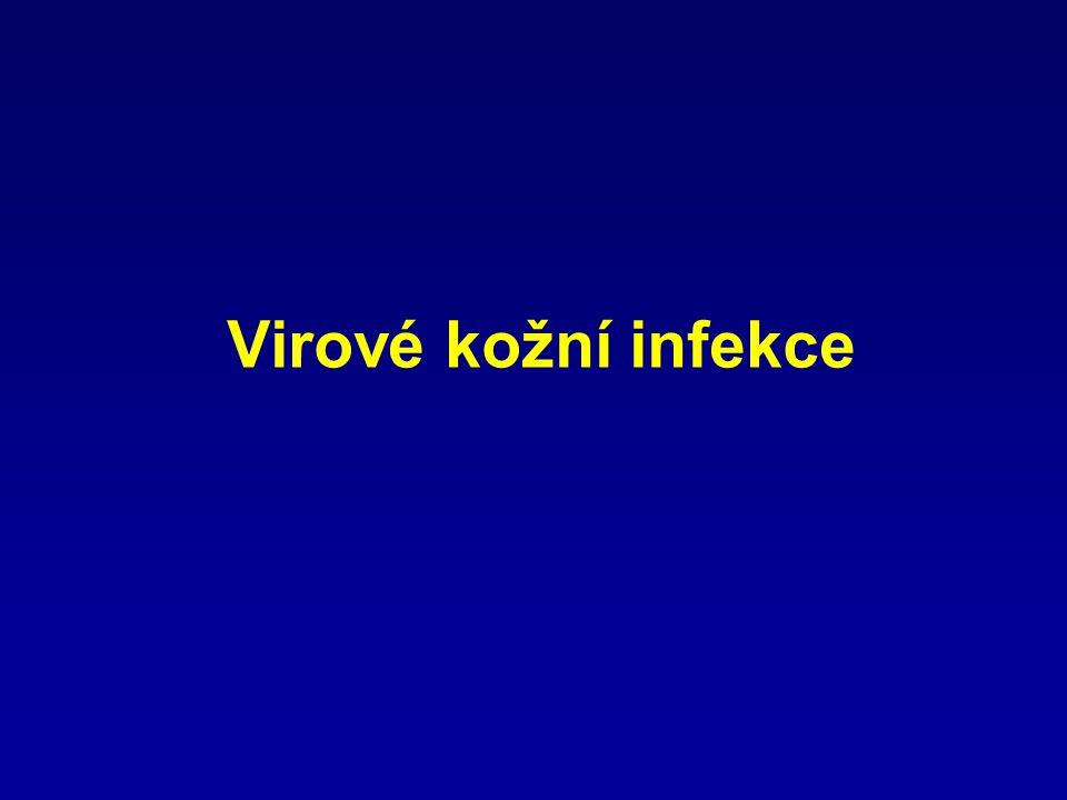Virové kožní infekce