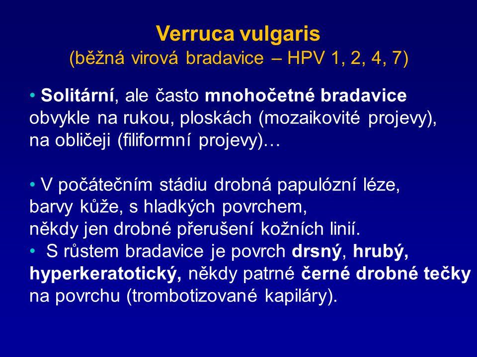 Verruca vulgaris (běžná virová bradavice – HPV 1, 2, 4, 7)