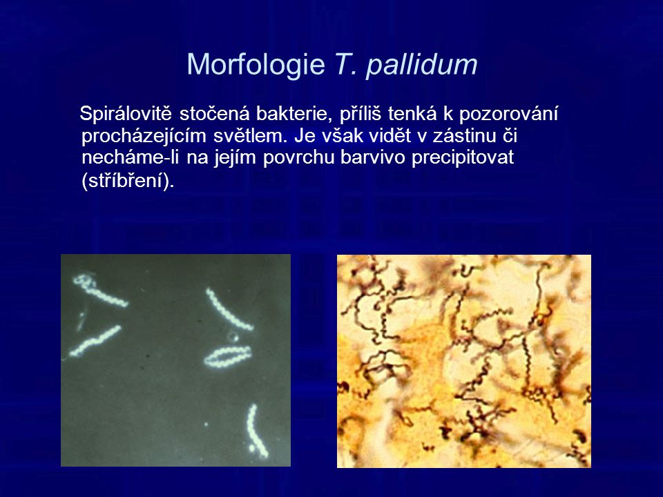 Morfologie T. pallidum