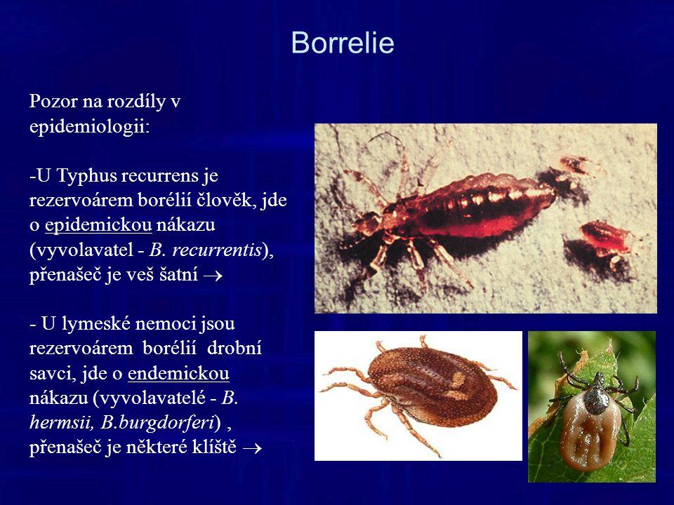 Borrelie Pozor na rozdíly v epidemiologii: