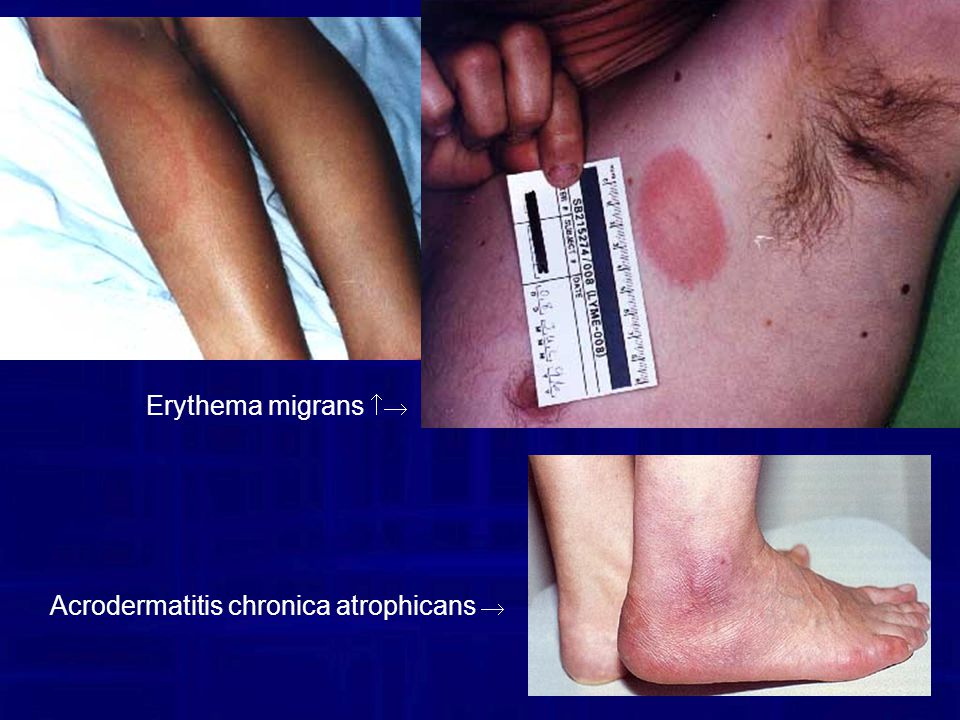 Erythema migrans  Acrodermatitis chronica atrophicans 