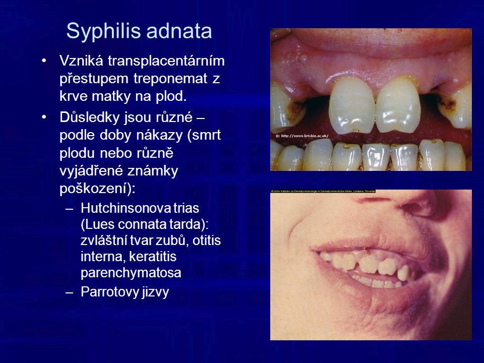 Syphilis adnata Vzniká transplacentárním přestupem treponemat z krve matky na plod.