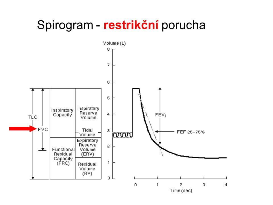 Spirogram - restrikční porucha