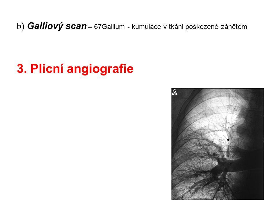 b) Galliový scan – 67Gallium - kumulace v tkáni poškozené zánětem