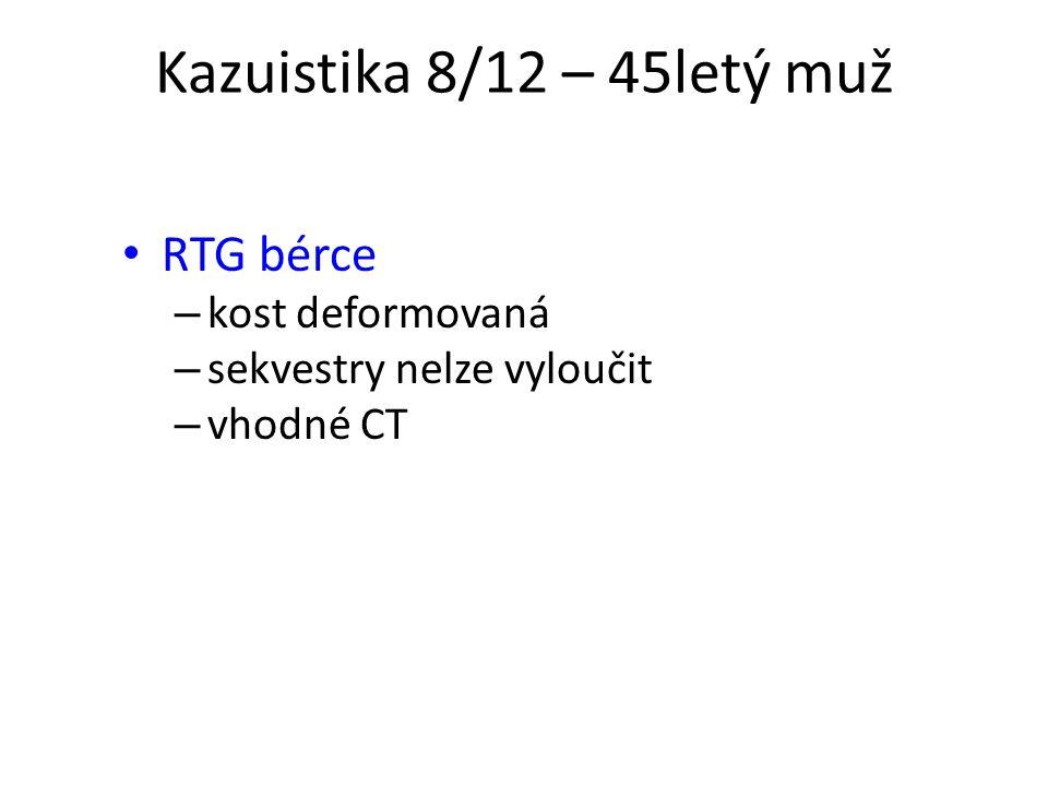 Kazuistika 8/12 – 45letý muž RTG bérce kost deformovaná