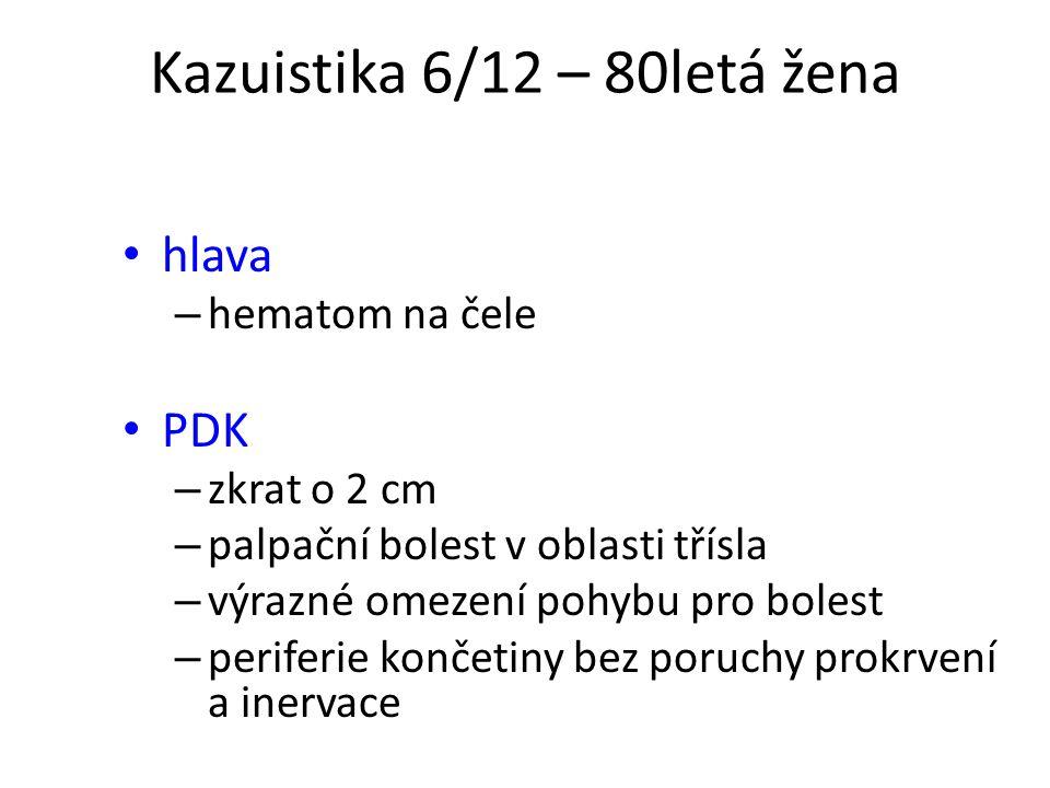 Kazuistika 6/12 – 80letá žena