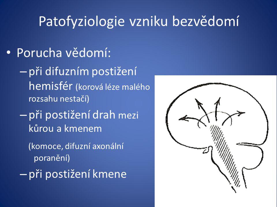Patofyziologie vzniku bezvědomí
