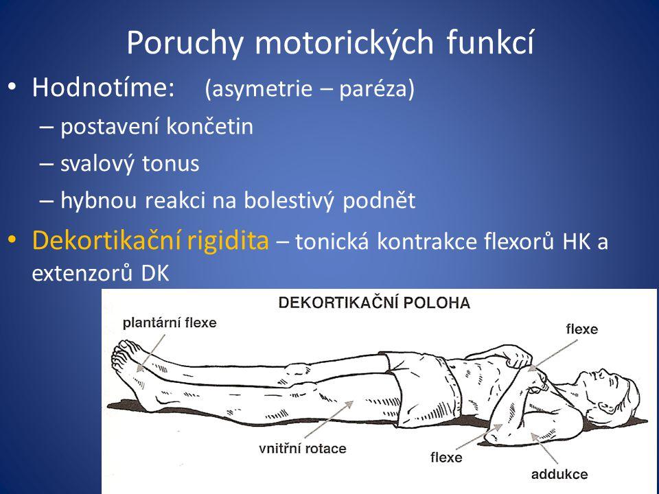 Poruchy motorických funkcí