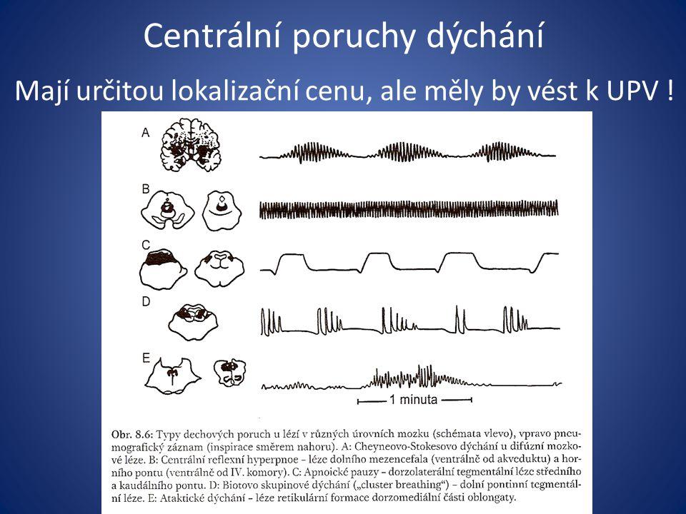 Centrální poruchy dýchání
