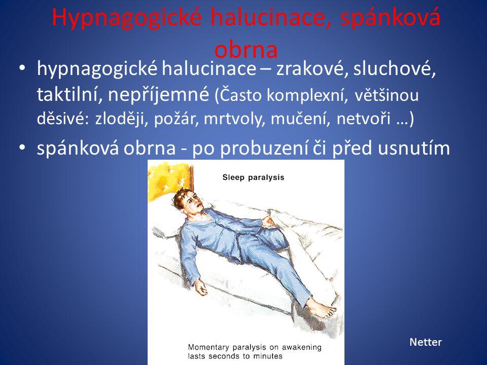 Hypnagogické halucinace, spánková obrna