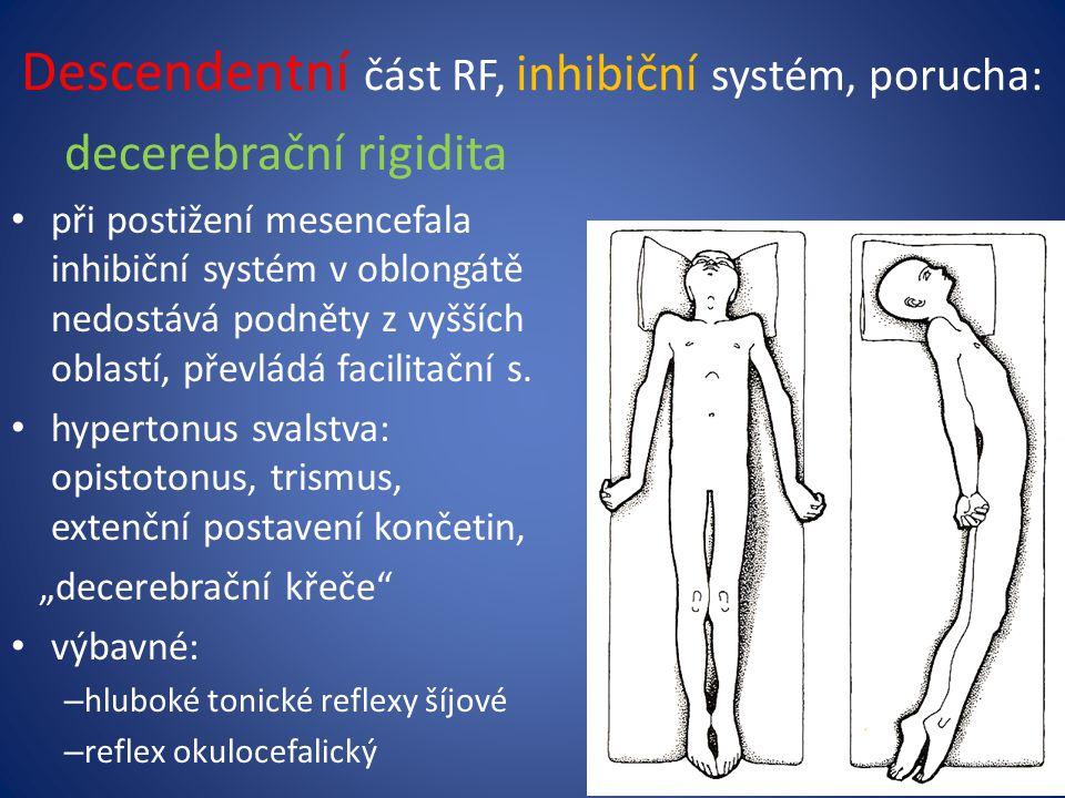 Descendentní část RF, inhibiční systém, porucha: