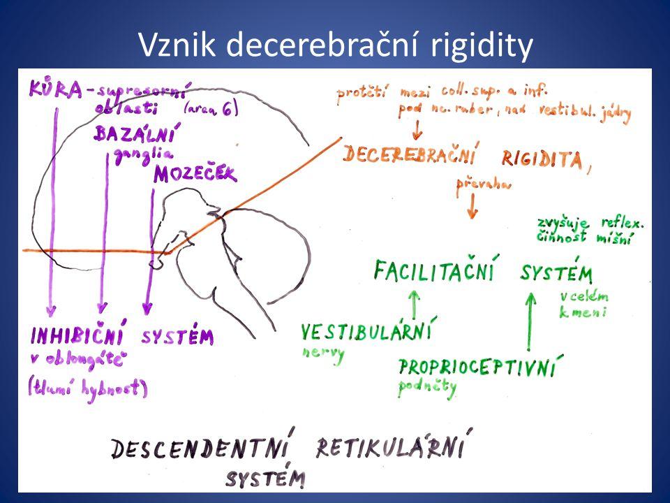Vznik decerebrační rigidity