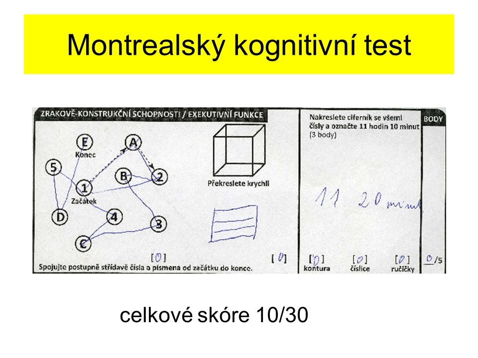 Montrealský kognitivní test