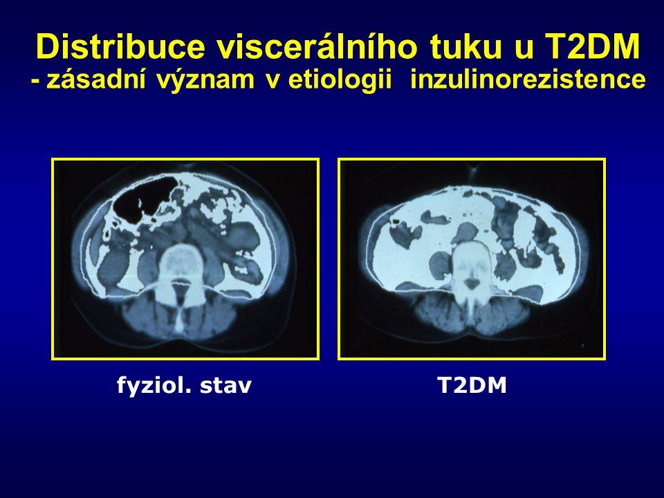 Distribuce viscerálního tuku u T2DM - zásadní význam v etiologii inzulinorezistence