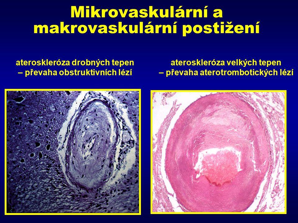 Mikrovaskulární a makrovaskulární postižení