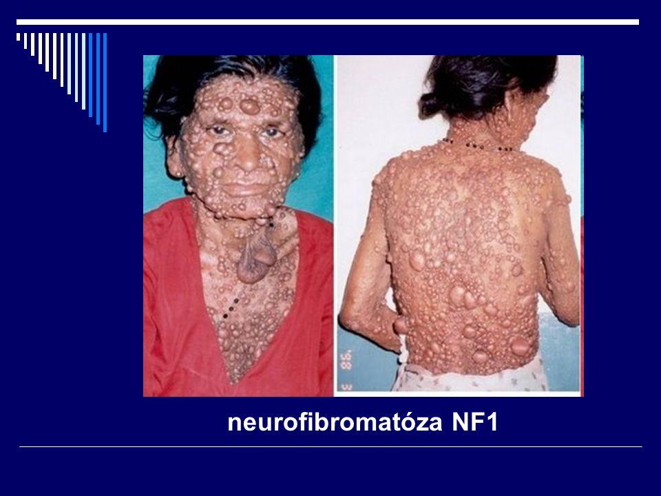 neurofibromatóza NF1
