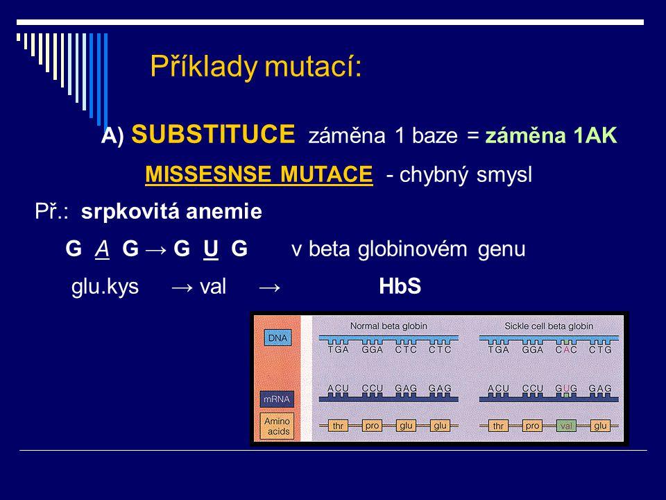 Příklady mutací: A) SUBSTITUCE záměna 1 baze = záměna 1AK