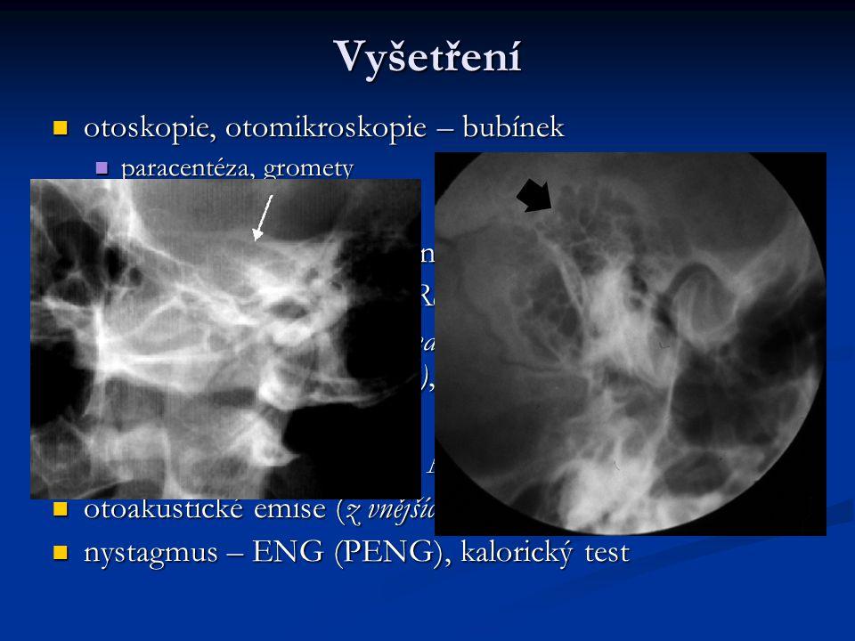 Vyšetření otoskopie, otomikroskopie – bubínek ladičkové zkoušky
