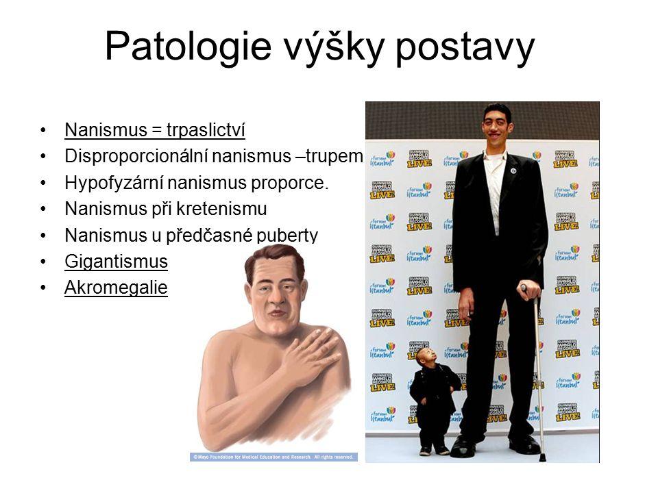 Patologie výšky postavy