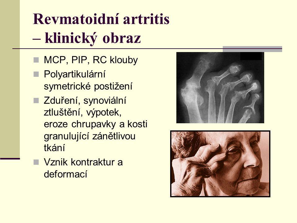 Revmatoidní artritis – klinický obraz